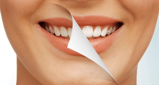 كريستال سمايل.. جديد طب تجميل الأسنان